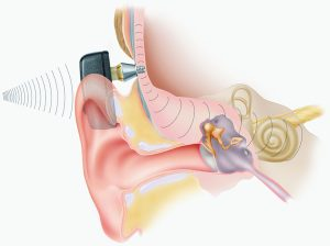 The Bone Anchored Hearing Aid (BAHA)is a surgically implanted system